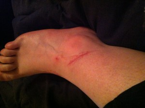 Side of right ankle.