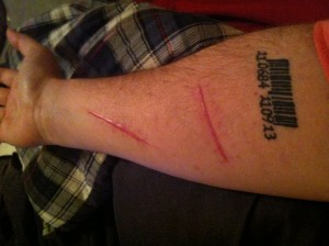 Right forearm, 2 lacerations, 16 sub stitches, 21 surface stitches total.